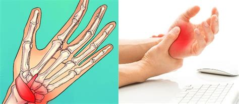 Why Your Hands Go Numb At Night and How to Prevent it