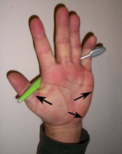 Do It Yourself Remedies to Relieve Carpal Tunnel Syndrome