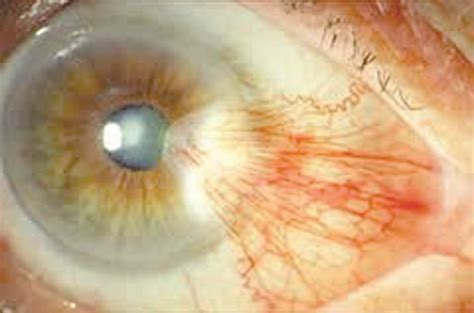 The surgical treatment of Pterygium - Tenerife News