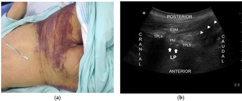 Toxins | Free Full-Text | Ultrasound-Guided Nerve Block